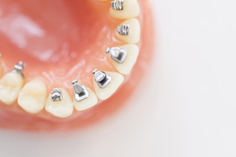 見た目だけでなく、歯列矯正はあなたの体をも守ります